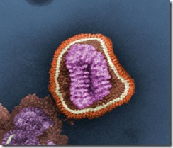 Influenza_virus_particle_color.jpg